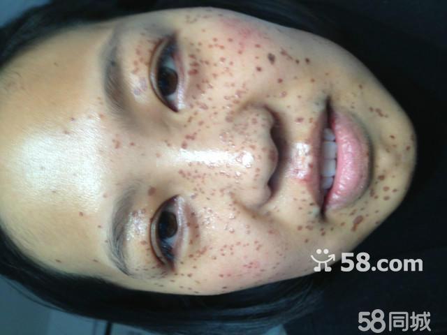鼻子皮肤结构图