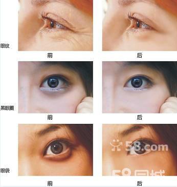 男人做双眼皮 做双眼皮多少钱 做双眼皮的最佳年龄